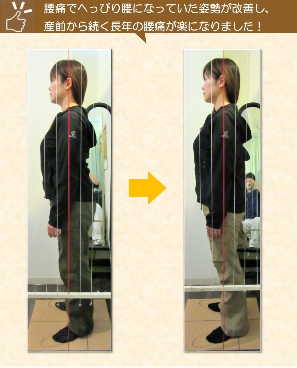 産後の腰痛、反り腰が改善