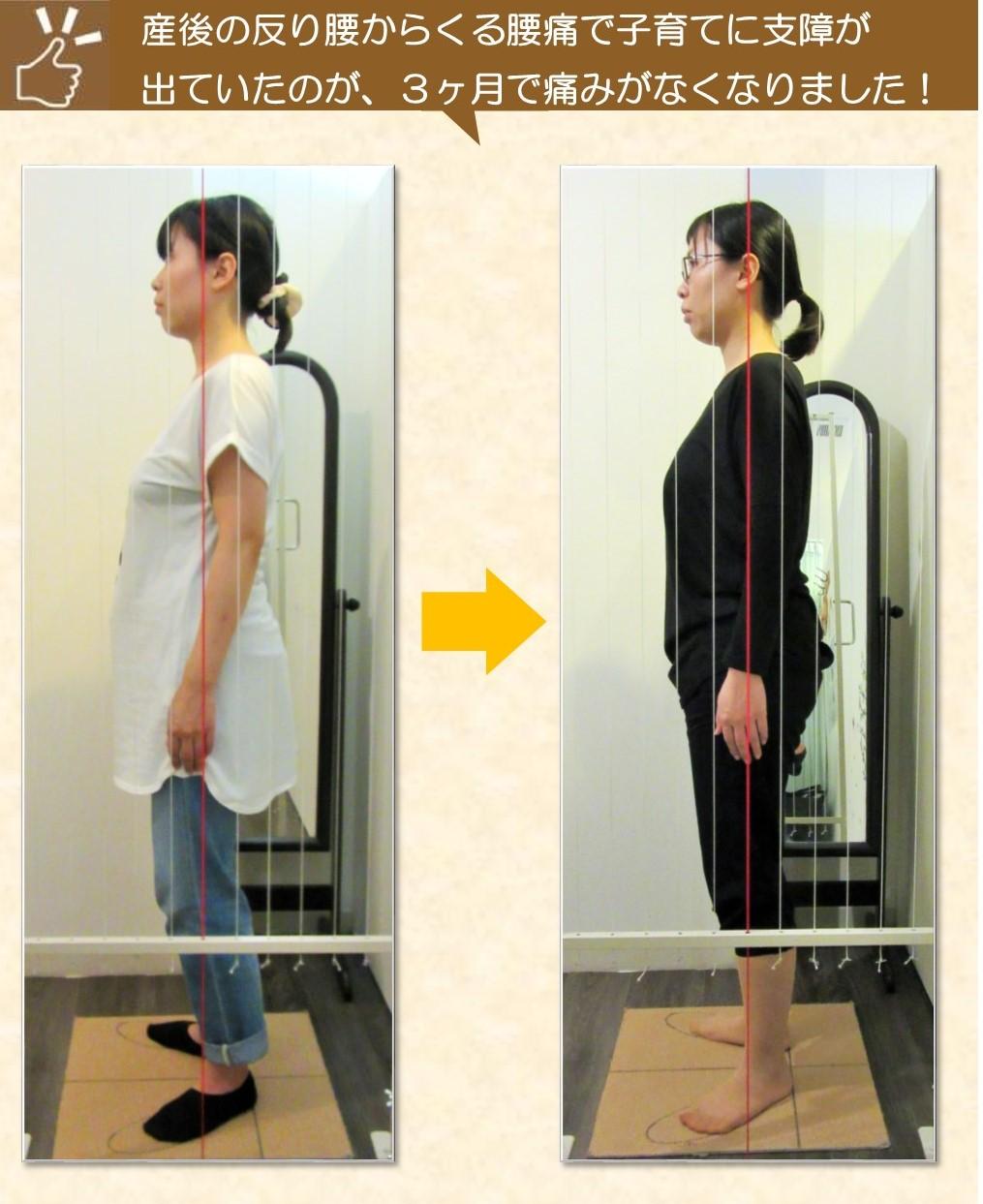 産後の反り腰、腰痛が改善