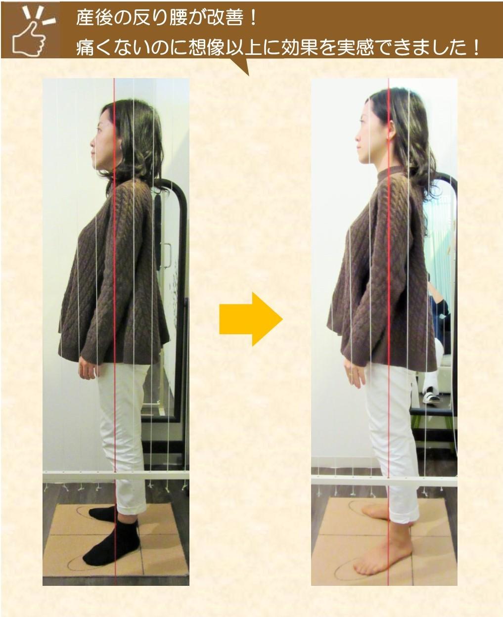 産後の反り腰が改善