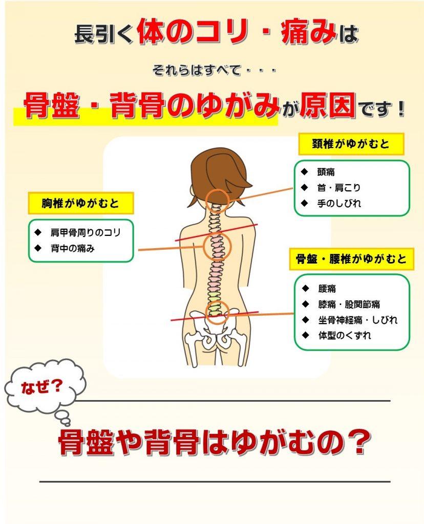 長ぎく痛みの原因は、骨盤と背骨のゆがみ